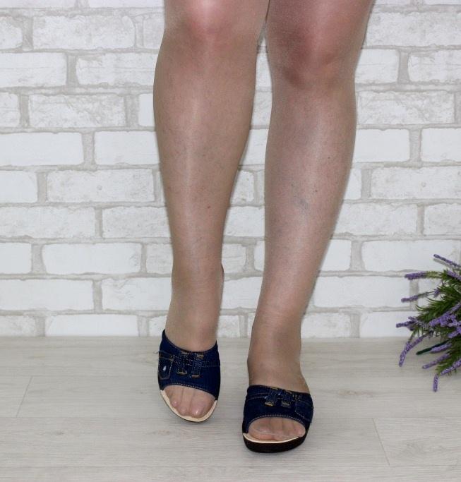 Распродажа летней обуви, купить босоножки женские, босоножки недорого, обувь Киев 7